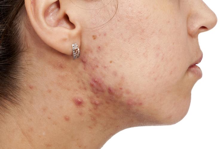 Remedio homeopático para el acné