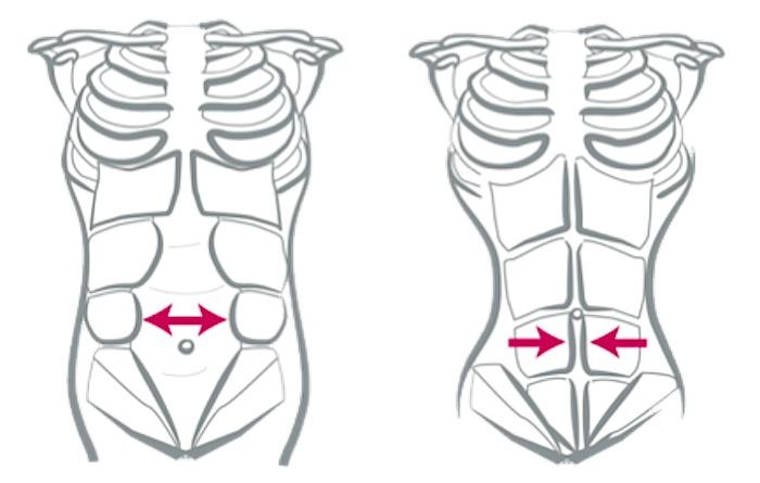 Cómo perder barriga después del embarazo