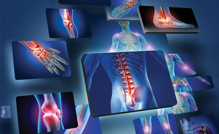 Remedio homeopático para la artritis reumatoide