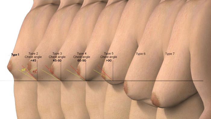 Pechos masculinos, ginecomastia
