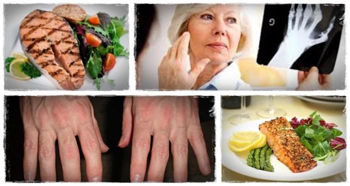 Mejor dieta para la artritis reumatoide