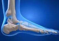 Remedio natural para los espolones óseos