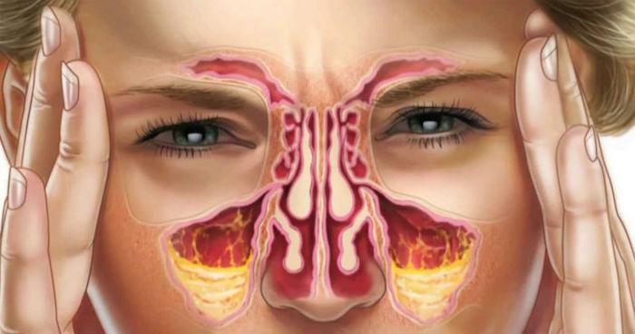 Cura natural del goteo post nasal