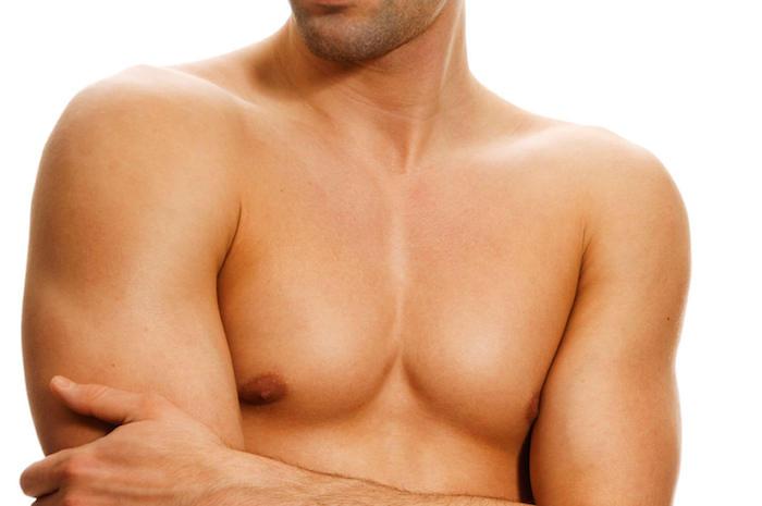 ¿Existe una cura para la ginecomastia?