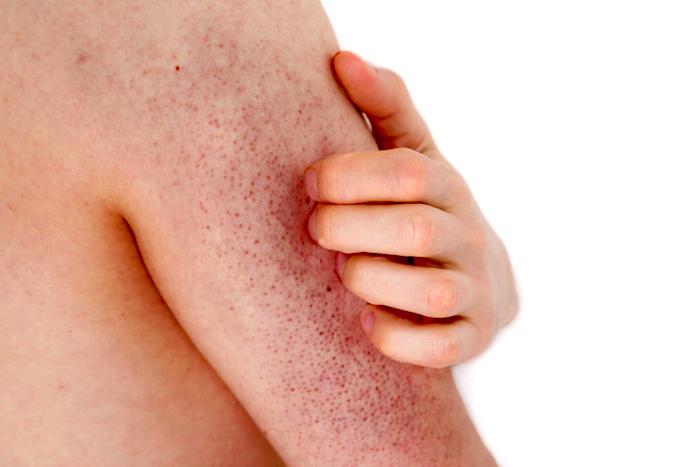 El tratamiento casero para la queratosis pilar
