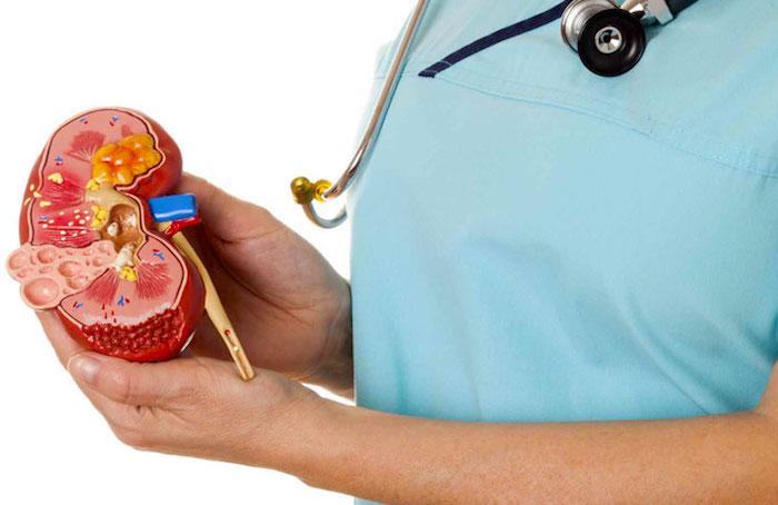 El tratamiento casero para los cálculos renales
