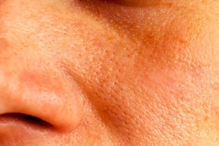 Los poros exesivamente abiertos y el tratamiento en el hogar