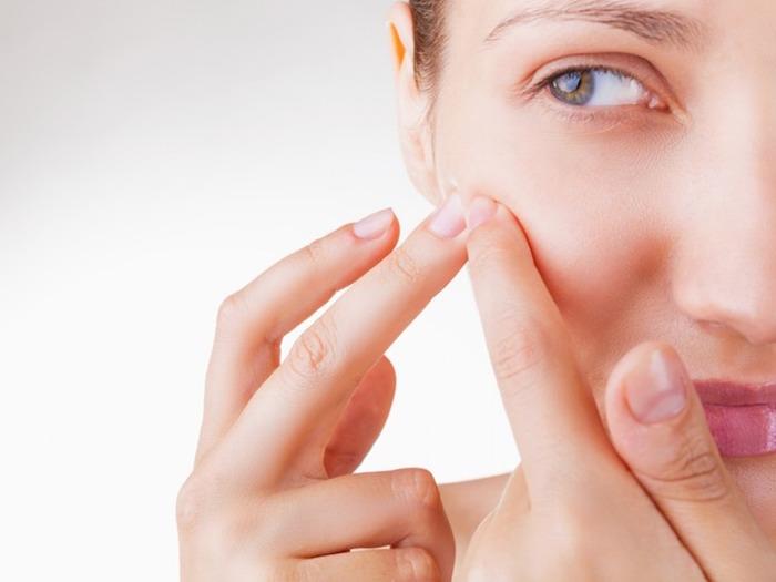Tratamiento casero para el acné