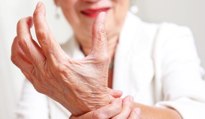 Tratamiento casero para la artritis reumatoide