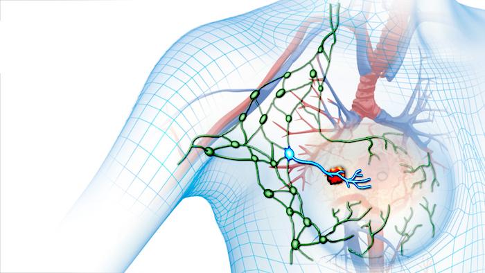 Cirugía de ganglios linfáticos
