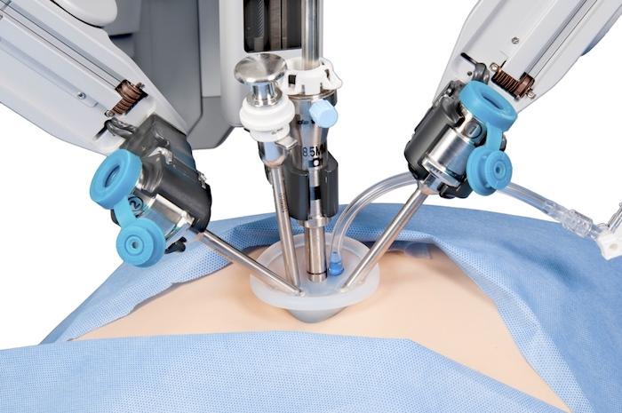 Cirugía para la vesícula biliar