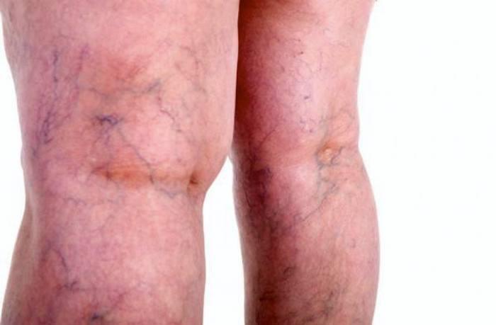 Tratamiento casero para las venas varicosas en las piernas