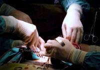 Complicaciones de la cirugía pancreática
