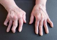 Síntomas de la artritis reumatoide
