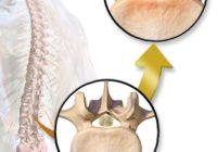 Cirugía para estenosis espinal lumbar