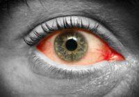 Prevención del ojo rosado