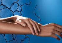 Tratamiento para manos secas rajadas
