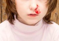 Cirugia para hemorragias nasales