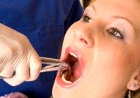 Complicaciones de la extraccion dental