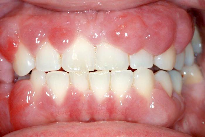 Causas de la hiperplasia gingival