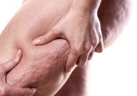 Mejor dieta para eliminar la celulitis