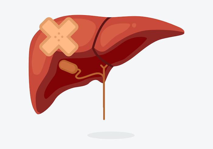 Etapas de la cirrosis hepática