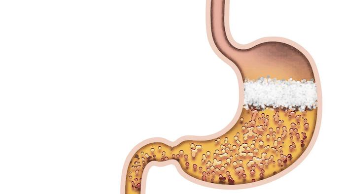Acerca de la indigestión