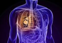 Tratamiento del cáncer de pulmón y efectos secundarios