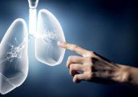El cáncer de pulmón y sus tratamientos alternativos