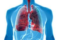 Complicaciones del cancer de pulmon