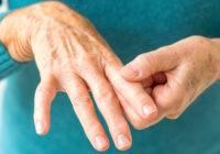 Hierbas para la artritis reumatoide