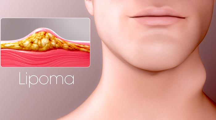 [Resim: Homeopatia-para-el-lipoma.jpg]