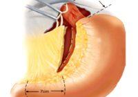 Complicaciones de la vagotomia