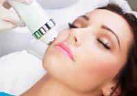 IPL tratamiento del acné con láser