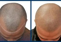 Trasplante de cabello: ¡la verdad!