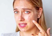 Los mejores suplementos para el acné hormonal