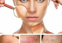 Enfermedades raras de la piel