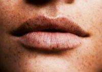 Pecas en los labios