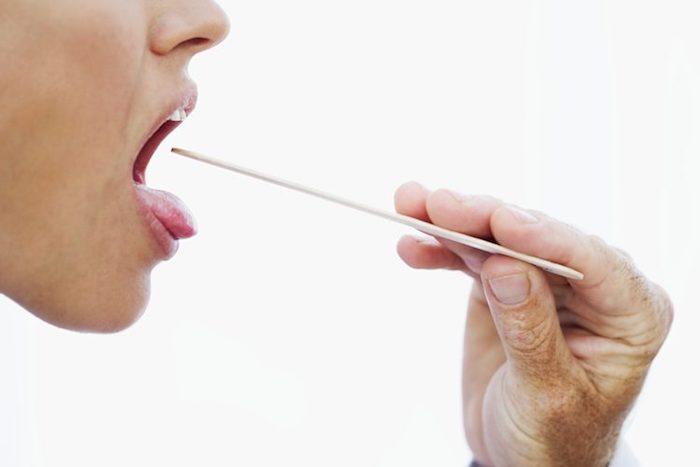 Prevención del dolor de garganta