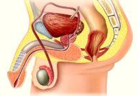 Cirugía de cáncer de testículo
