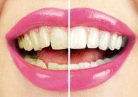Los efectos secundarios del blanqueamiento dental