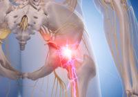 Remedio homeopático para el dolor del nervio