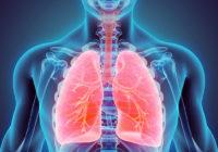 Cáncer de pulmón mal diagnosticado
