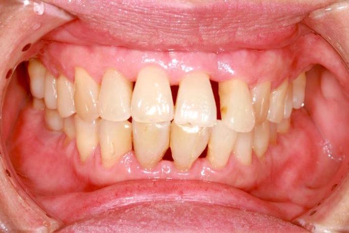 Causas de las encías dolorosas