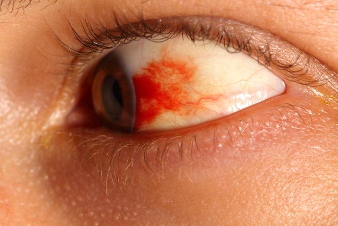 Causas de estallido del vaso sanguíneo en el ojo