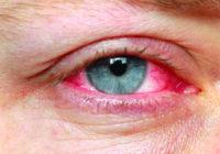 Dolor en los ojos