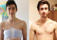 Cirugía de transgénero