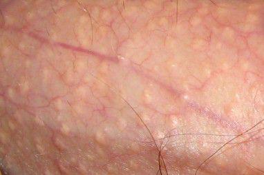 Normalise le travail des glandes sébacées de la personne
