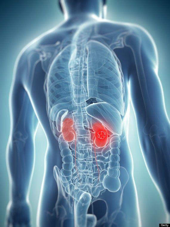 Cáncer de Renal - Riesgos, síntomas, tratamiento y consejos de prevención