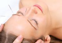 Acupunctura para Paralisis de Bell